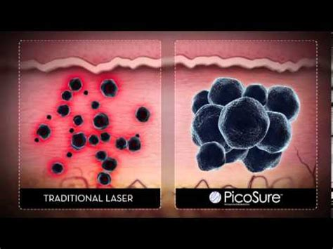tattoo removal philadelphia removal with picosure in philadelphia mainline