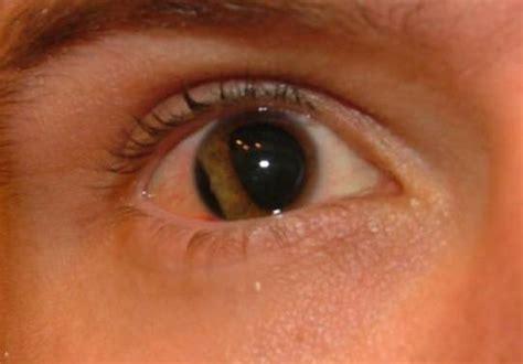 eye injury goferboy paintball eye injury