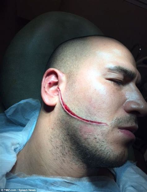 photos show injuries sustained by mob wives boyfriend