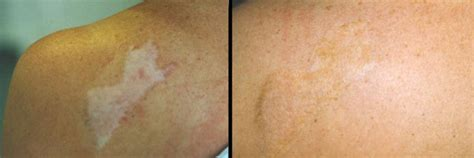 medical tattooing for scars tattooing permanent cosmetics