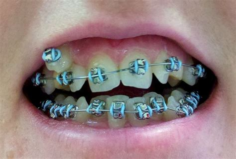 best color braces dental braces teeth braces colors dental