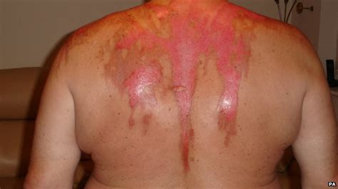 photos of hot water burns scalded husband no shame for male domestic abuse