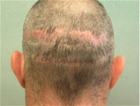 cover scars from hair transplant best fue hair transplant surgeon dermhair clinic la 1