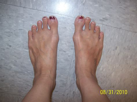 Pictures Of Bunions On Your