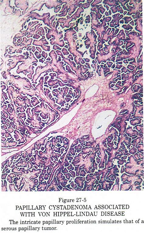 Papillary Cystadenoma Pathology Outlines by Pathology Outlines Papillary Cystadenoma Of Mesosalpinx