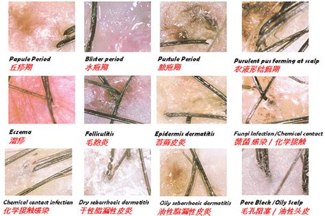 Hair Disease Types by Types Of Hair Disorders Pictures To Pin On