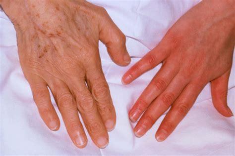anemia skin color anemia
