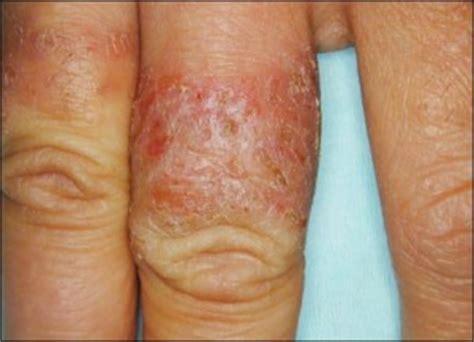 white gold allergy symptoms white gold