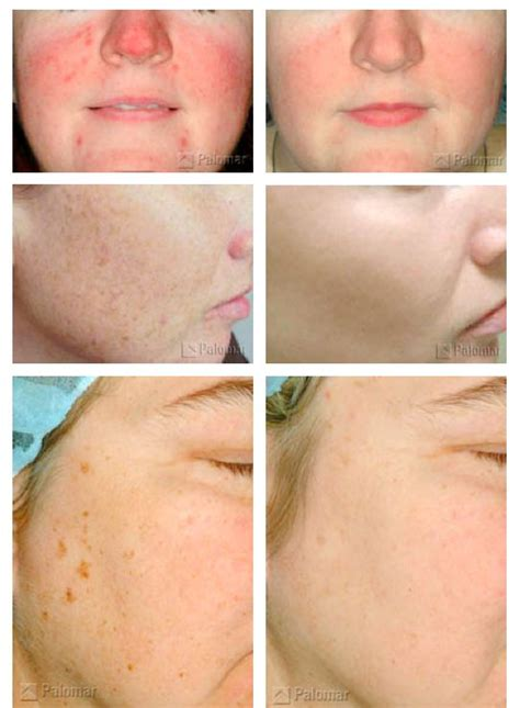 Palomar Laser Review | before and after of a photofacial wow palomar laser