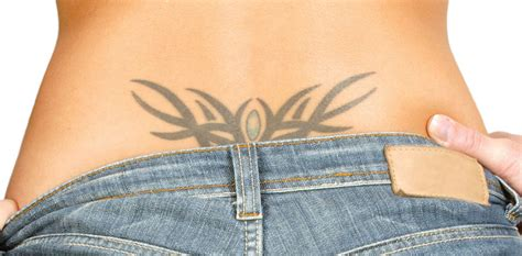 tattoo removal montreal tattoo removal ideal body clinic clinique corps id 233 al