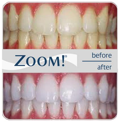 7 Reasons To Get Your Teeth Whitening Procedure Done By A Pro by The Best Teeth Whitening Kits For Home Use In 2017 Read