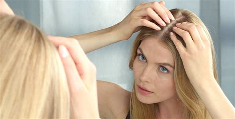 high hairlines a firm of beauty in women mуthѕ abоut hаir loss the confirm fасtѕ my hair and