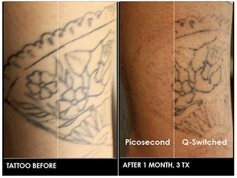 picosecond laser tattoo removal cynosure physicians picosure 174