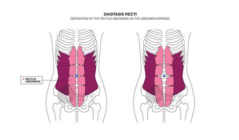 prevent diastasis recti  pregnancy diary