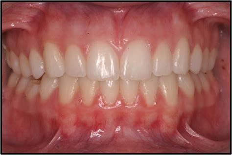 healthy gums gingival gum recession periodontics implant center