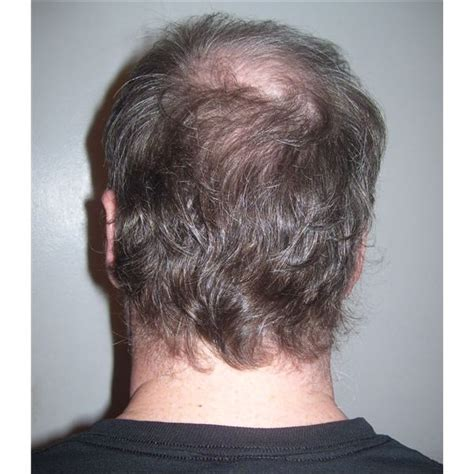 female pattern hair loss birth control 21 causes for hair loss that you should know about page