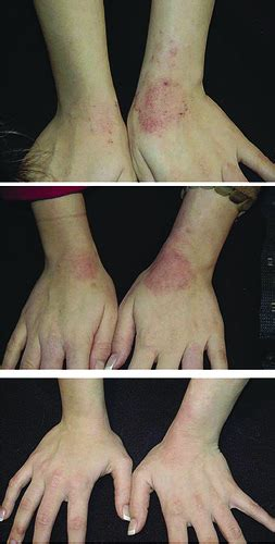 Can Detoxing Cause Hives by Arbonne Before And After Eczema Flickr Photo
