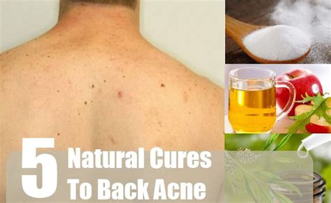back home treatment 5 cures for back acne how to cure back acne