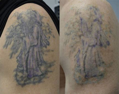aftercare tattoo removal the importance of proper aftercare laser removal