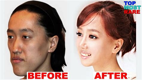 photo gallery before and after cosmetic surgeon in the 50 korean plastic surgery before and after photos youtube