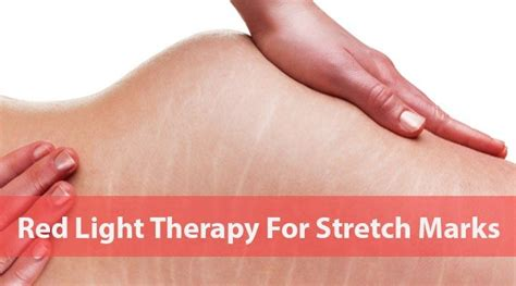 red led light therapy for eczema 43 best red light therapy images on pinterest red light