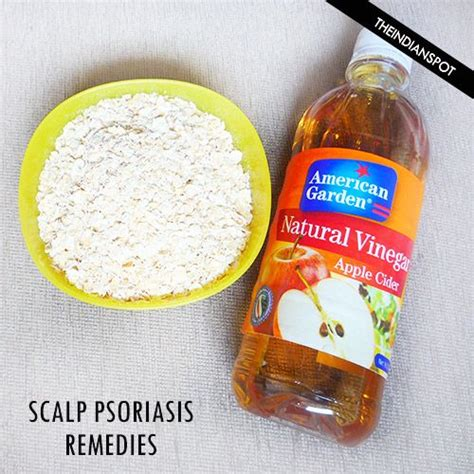 remedies to treat scalp psoriasis disorders