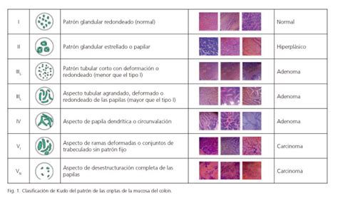 pit pattern classification kudo submucosal chromoendoscopy a technique that highlights