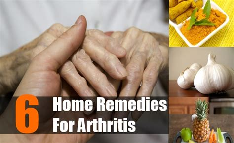 6 home remedies for arthritis treatments cure