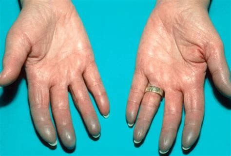 can stress cause a very light period lupus pictures slideshow causes symptoms diagnosis and