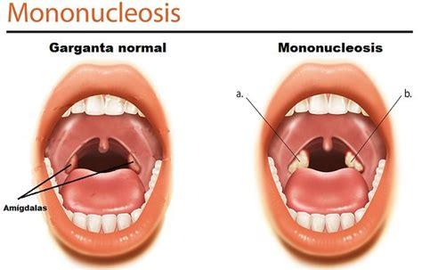 imagenes de bolitas blancas en la garganta bolitas blancas en la garganta causas y remedios