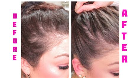 rogaine for women before and after photos i m going baled cure for women lossing hair hair loss
