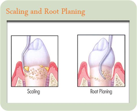 Garden Grove Dentist by Periodontal Disease Treatment Join Our Family Today