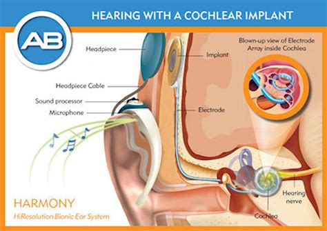 cochlear implant diagram what is a cochlear implant oxford hospitals