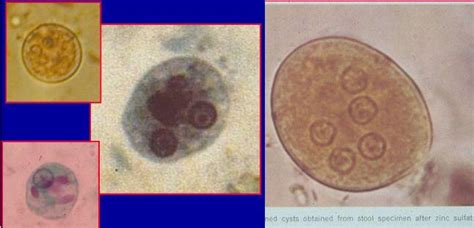 Stool Specimen For Ova And Parasites by Test 3 Microbiology 522 With Sargentini At At