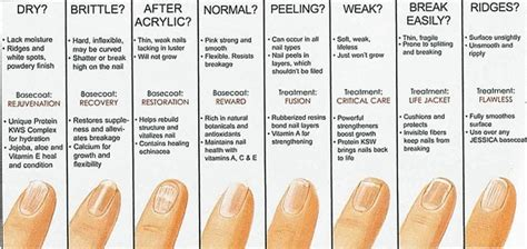 Your Nail Type by Fingernails Can Reveal Clues About Your Health Opinions