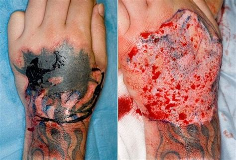 tattoo infection from black ink risques associ 233 s aux tatouages allergies infections et