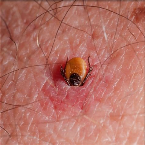 do bed bugs stay on your body tick borne disease pathogens