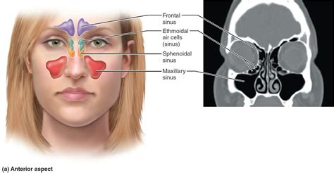 Asal Sinus sinus infection causes symptoms diagnosis treatment home remedies