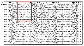 eeg pattern recognition quiz electroencephalogram eeg seizure test patterns