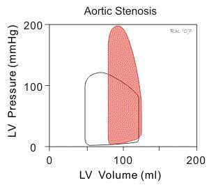 aortic stenosis wiggers diagram physiology