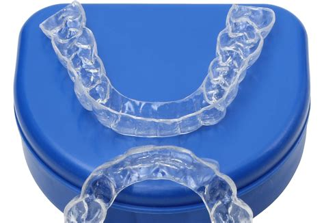 Acrylic Retainer clear retainers orthodontic treatment information