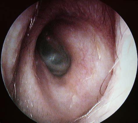 tumeurs de l oreille cancer auriculaire cancer de l