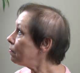 womens haircuts for hairloss hairstyles for older women with thinning hair hair style