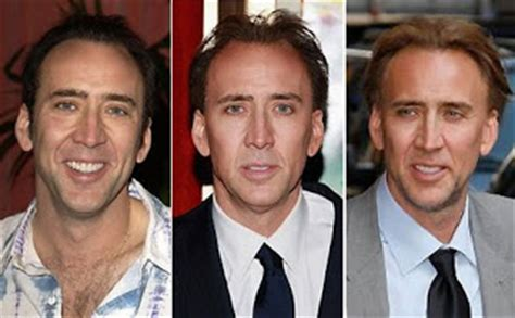 going going gone outing bald celebrities jimmy kimmel going going gone outing bald celebrities nicolas cage