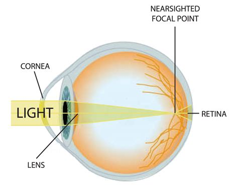 retina diagram eli5 why does squinting help with bad vision see
