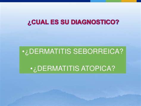 dermatitis atopica cuero cabelludo tratamiento dermatitis seborr 233 ica