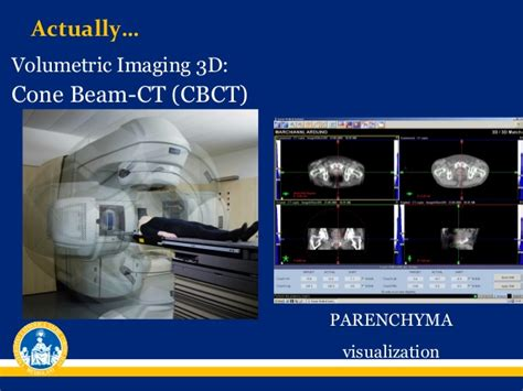 Cd E Book Cone Beam Volumetric Imaging In Dental And Maxillofaci image guided radiotherapy
