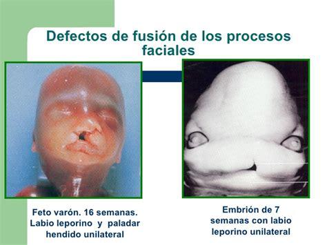 imagenes reales de un feto de 25 semanas soma pres final