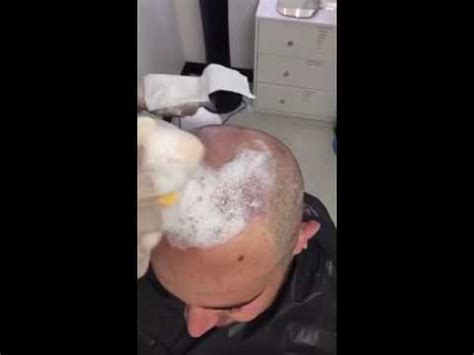 can hot water damage fue hair grafts how to do the first hair washing after get a hair transplant