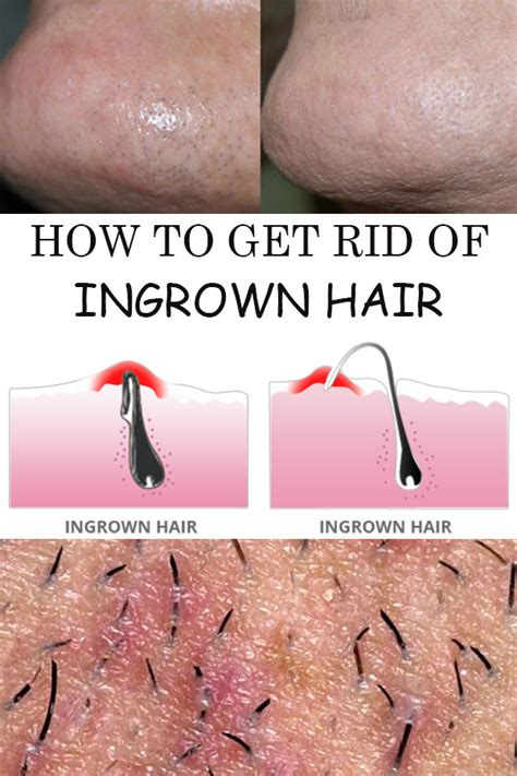 how to treat an ingrown hair on chin how to get rid of ingrown hair timeless beauty tricks